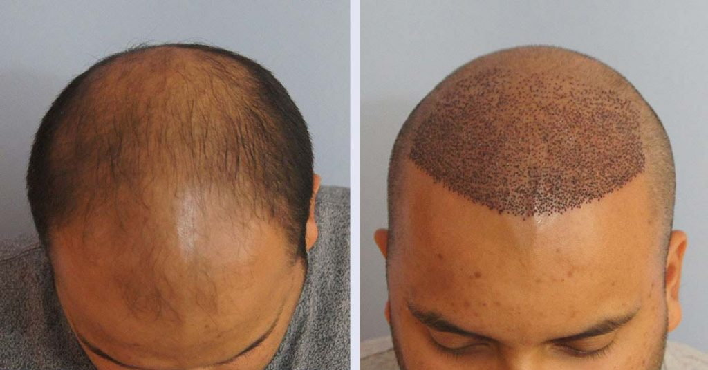 After-Hair-Transplant-Surgery