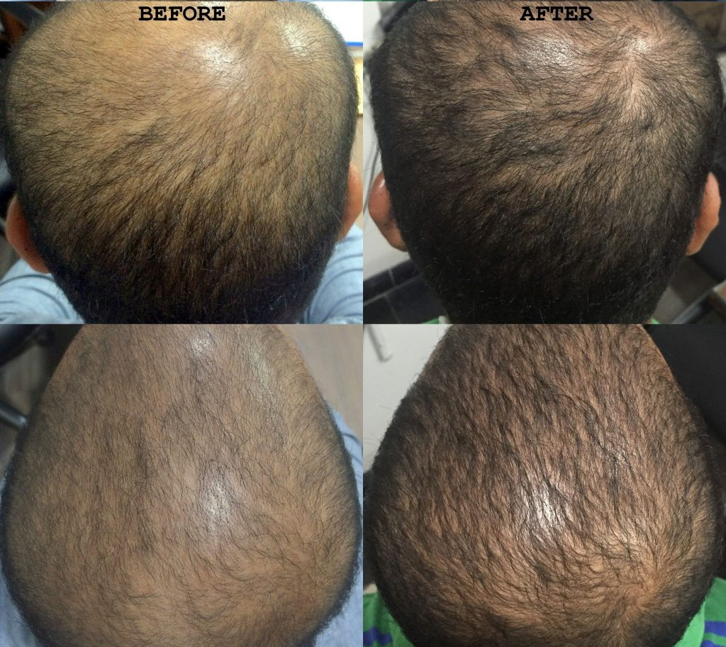 Androgenetic-alopecia-Before-and-After-PRP