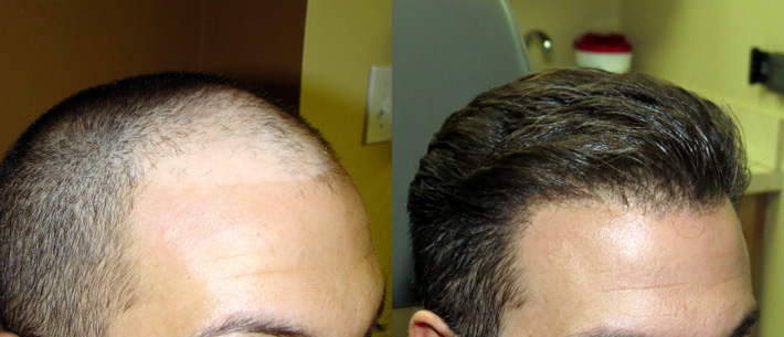 FUE-Hair-Transplant-Before-and-After-2