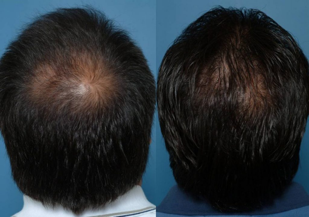 Hair-Transplant-after-903467-2