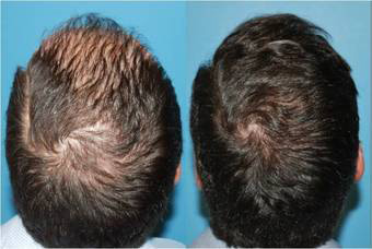 Hair-transplant-before-388991