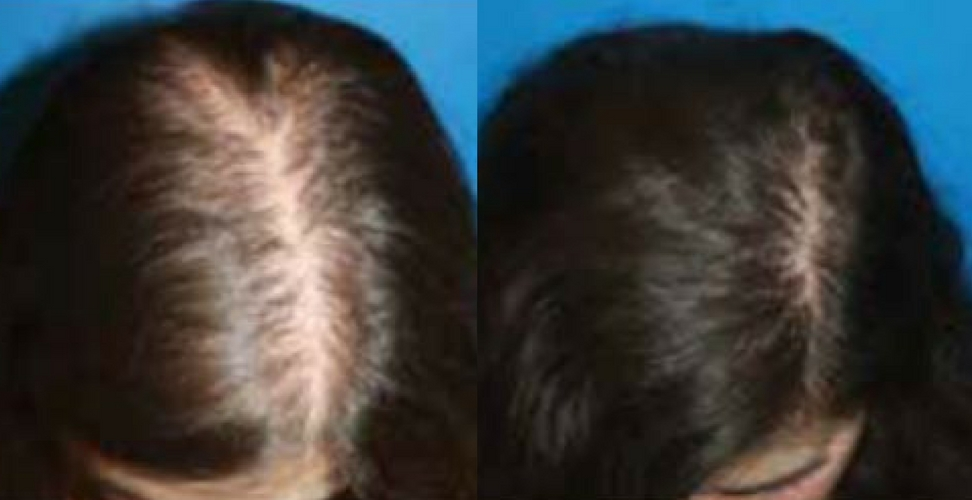 PRP-therapy-hair-1