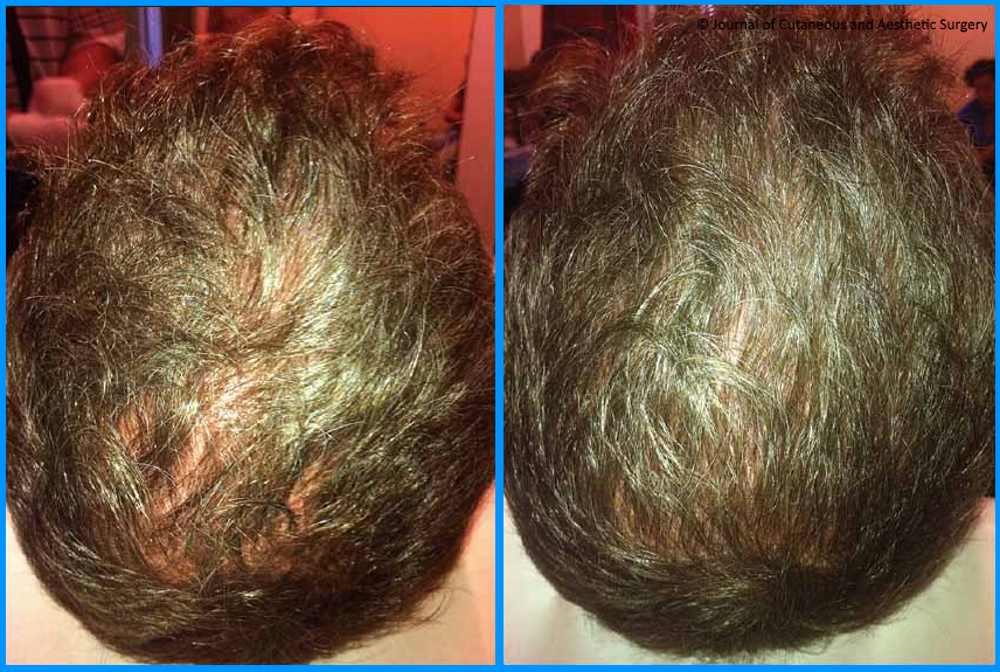 before-and-after-prp-hair-restoration-sante-4