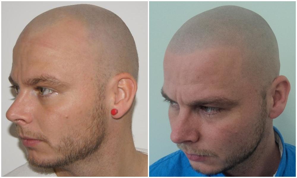 before_after_vinci_smp_face_left