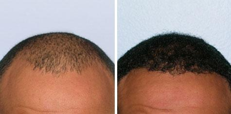 hair-transplant-before-and-after-M-Front-FUE-SS-1227g_large