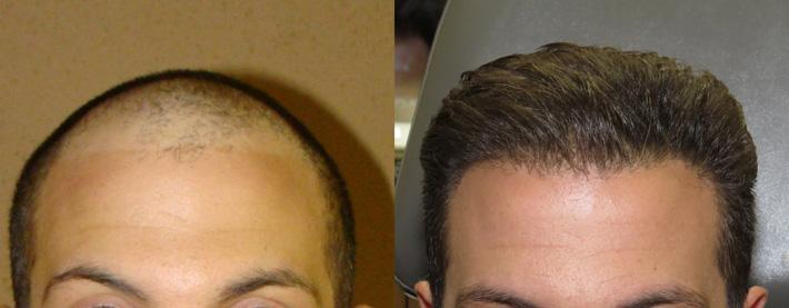 hair-transplantation-chicago-z-01